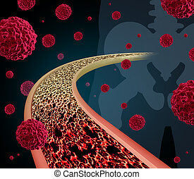 Bone Cancer - Bone cancer concept illustration as a close up...