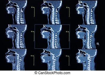 bone), cuello, serie, imágenes, automatizado, (cervical, ...