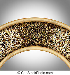 Bone Disease Concept - Bone disease concept with...