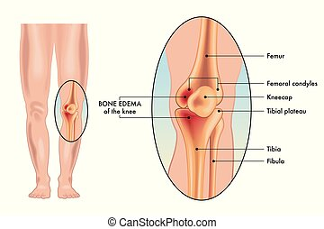 bone edema of the knee - A vector medical illustration of ...