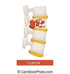 Bone tumor skeleton disease or cancer medicine - Tumor...