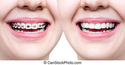 bonito, perfeitos, braces., após, dentes, sorrizo, antes de