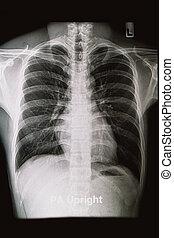 borst, röntgenstralen, beeld