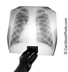 borströntgenstraal
