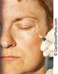 Botox injection - Botox syringe injection, close up