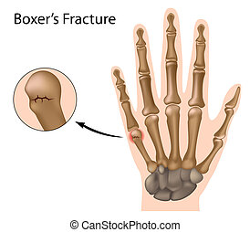 boxer's, eps8, fracture