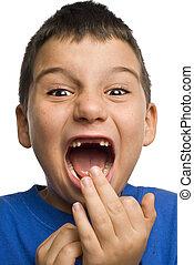 Boy missing teeth