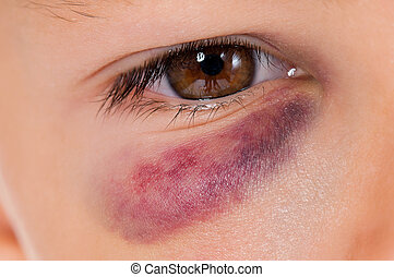 Boy with bruise - Close-up of boy eye with real bruise