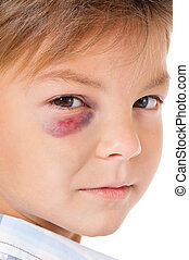 Boy with bruise - Portrait of boy with bruise, isolated on...