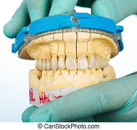 brücke, porzellan, -, dental, z�hne