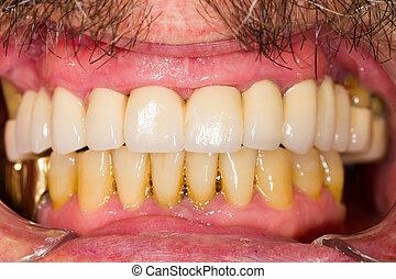 brücken, dental, kronen