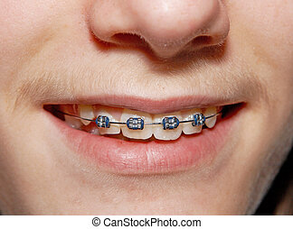 Braced smile - Close-up of a smiling young teenager with...