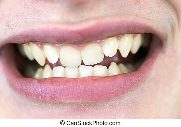 Braces Candidate - Boy with crooked teeth and smile.