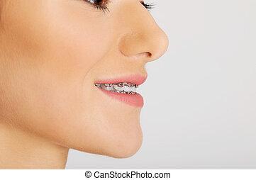 braces., dental