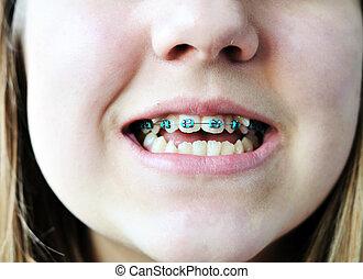 braces on bad crooked teeth