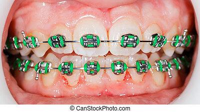 Braces on teeth - Closeup photo of orthodontic braces on ...
