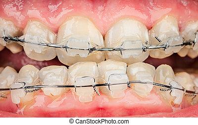Braces - Photo braces closeup .