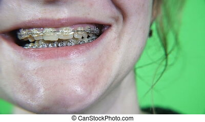 Braces. The girl with braces is smiling. Green rir