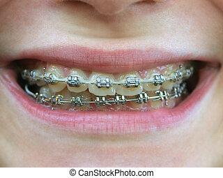 brackets on teeth - braces on teeth