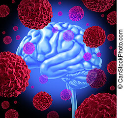 Brain Cancer - Human brain cancer with cells spreading and...