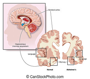 Drawing of the brain, showing the hippocampus and areas of brain involvement in Alzheimer's disease