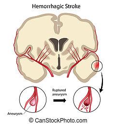 Brain hemorrhagic stroke, eps10 - Cross section of the brain...