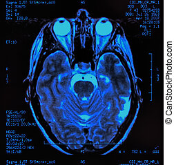 Brain MRI - magnetic resonance image (MRI) of the brain