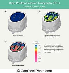 Brain PET scans. When working computer scans the brain, ...