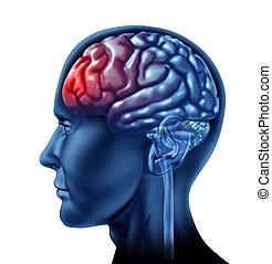 Brain Problems - Migraine head ache as a human head with a...