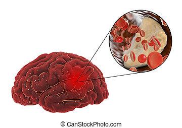 Brain stroke concept