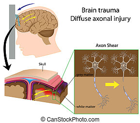 Brain trauma with axon shear, eps8 - Brain trauma with axon...