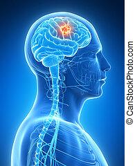 Brain tumor - 3d rendered illustration - brain tumor