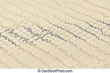 Brain wave (aged newspaper) electroencephalogram EEG for...