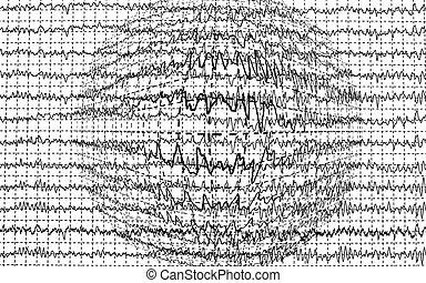 brain wave encephalogramme EEG isolated on  white background