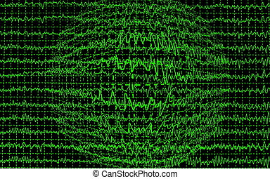 brain wave encephalogramme EEG