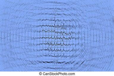 Brain wave on electroencephalogram EEG
