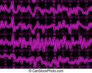 brainwave on encephalogram EEG