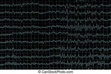 brainwave on encephalogramme EEG