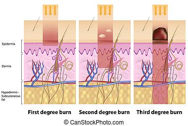 brandwonden, eps8, huid