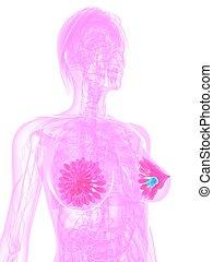 breast cancer - 3d rendered illustration of tumor in...