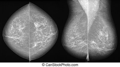 Breast cancer mammography in 2 projections - Mammography in...