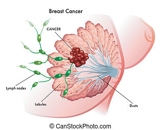 Breast Cancer - medical illustration of the development of...
