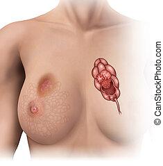 breast cancer - shifts in women's breast lobules