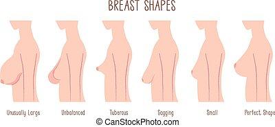 Breast Shape chart -comparing large, unbalanced, Tuberous, ...