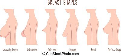 Breast Shape chart
