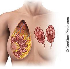 breast tumor - shifts in women's breast lobules