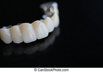 Bridge denture - Fixed type denture = Bridge
