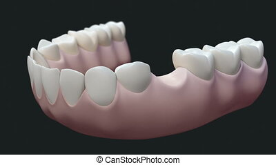 High quality animation 3D showing the installation process of Dental bridge.