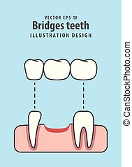 Bridges teeth illustration vector on blue background. Dental concept.