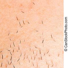 bristles on the skin. close-up